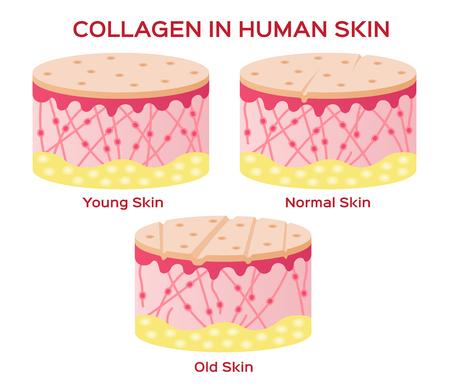 Kollagen in jüngere Haut und Alterung Vektor-Version