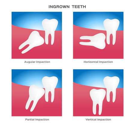 impacted and wisdom tooth vector Ilustrace