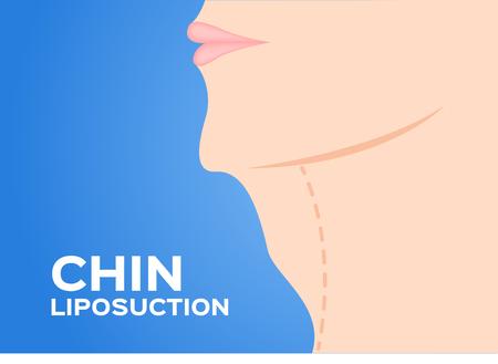 Chin Liposuction voor en na, dikke, cosmetische huid