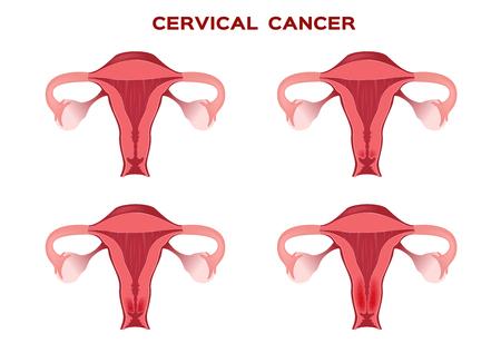 uterine: cervical cancer in women uterus  anatomy