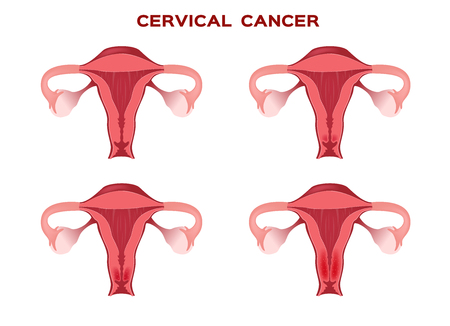 cervical cancer in women uterus  anatomy