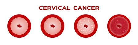 cervical cancer in women uterus / anatomy