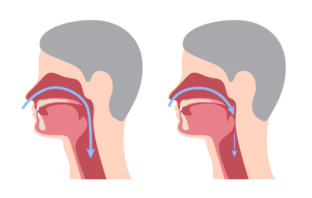 a snoring infographic / vector Illustration