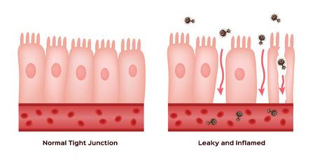 Coeliakie Beschadiging van de dunne darmwand. goede en beschadigde villi. lekkende darm progressie Stock Illustratie