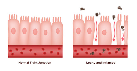 Celiac disease Small intestine lining damage. good and damaged villi . leaky gut progression Illustration