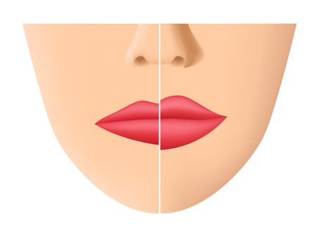 Lip and mouth skin filler vector.