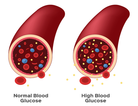 Glucose in blood vector
