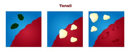 Tonsil stones in the mouth illustration. Illusztráció