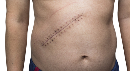 the scar after max stitched up wound after mole removal surgery  skin Stock fotó