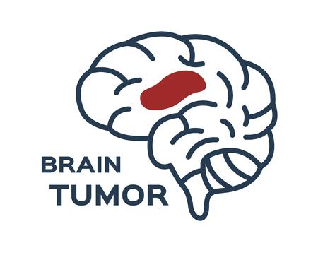 Icône de vecteur de tumeur cérébrale.