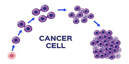 cancer cell stage and development vector Иллюстрация