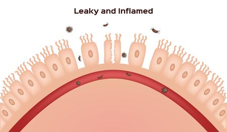 Maladie c?liaque Dommages affectant la paroi de l'intestin grêle. villosités bonnes et endommagées. progression de l'intestin qui fuit