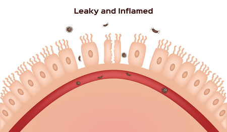 Malattia celiaca Danno al rivestimento del piccolo intestino. villi buoni e danneggiati. progressione intestinale che perde Archivio Fotografico - 94276567