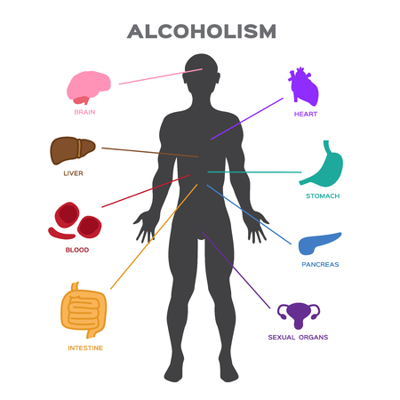Alcoholism effect to human body . anatomy vector 矢量图像