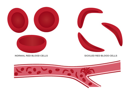 Normal red blood cell and sickle cell vector