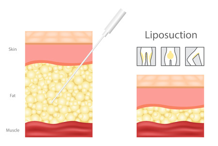 Liposuction before and after, fat, cosmetic. Step of liposuction and icon.
