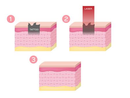 laser voor het verwijderen van tatoeages en sproeten in diepe huidvector. huid concept Vector Illustratie