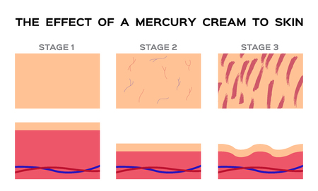 Dangerous mercury cream damaged human skin vector Illustration