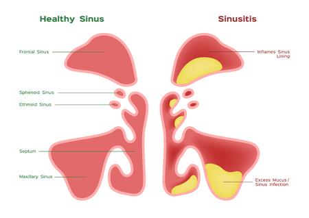 Nasal sinus. Healthy and inflammation sinus vector