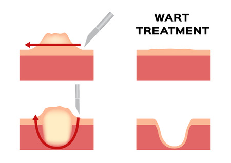 Wart treatment . Remove it from skin by surgery vector callus