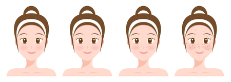 normal face and freckle face Vector illustration. 向量圖像