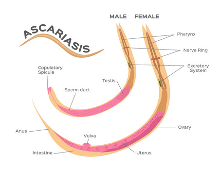 Roundworms parasites, ascariasis  male and female worm infographic graphic.