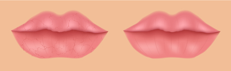 Healthy and dry lip mouth with no moisturizer.