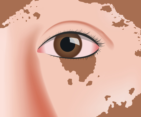 vitiligo on skin layer anatomy vector
