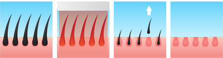 Hair laser removal vector illustration.