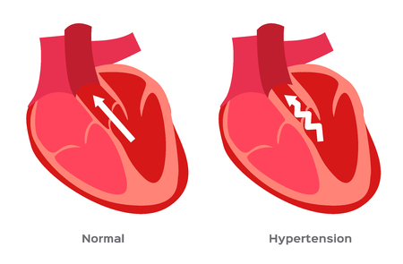 Hypertension, high blood pressure vector. Human anatomy illustration.