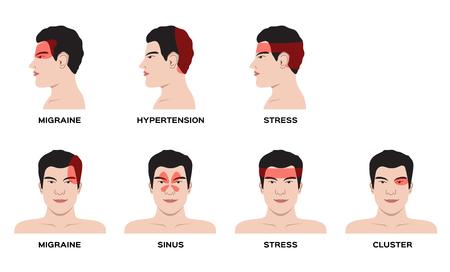 Un vector de tipo de dolor de cabeza para el concepto de órgano y anatomía