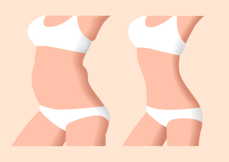 liposuction before and after , fat , diet , surgery Ilustrace