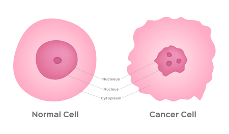 cancer cell stage and development vector Illustration