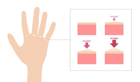 wart and Keratosis on hand vector