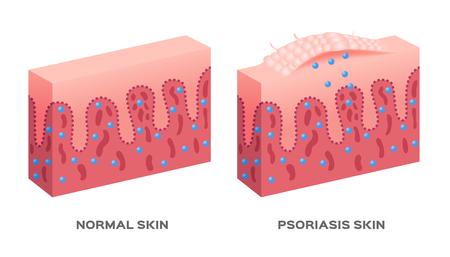 maladie de la peau / psoriasis