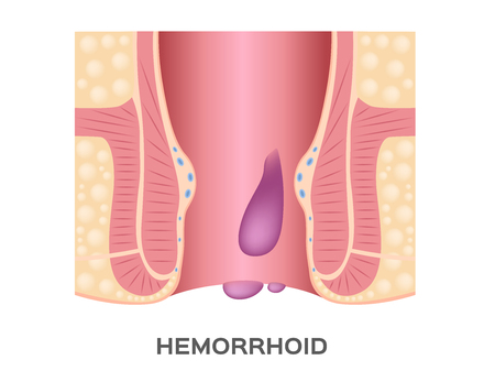 Hemorrhoids stage vector. and anus