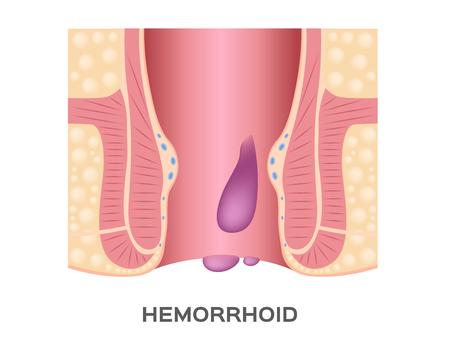 Vecteur de stade des hémorroïdes. et l'anus Vecteurs