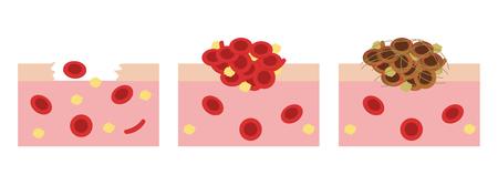 bloedplaatjes en fibrine op wondvector