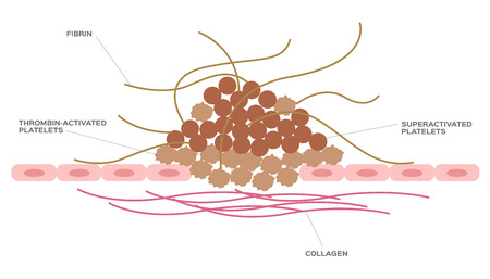 platelet and fibrin on wound vector