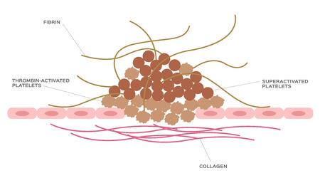 platelet and fibrin on wound vector 版權商用圖片 - 105739797