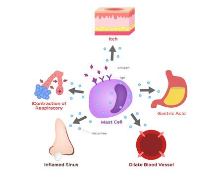 mestcelvector / histamine / allergie Vector Illustratie