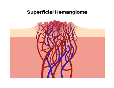 superficial hemangioma vector  organ and anatomy Illustration