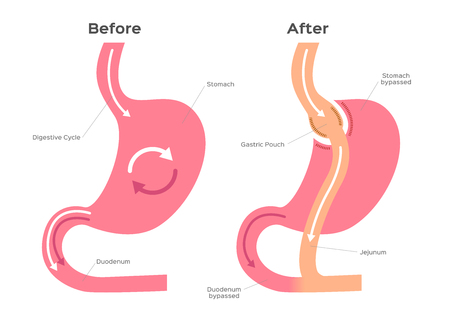 Gastric Bypass vector  stomach anatomy