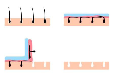 cera y cera en el pelo humano vector / depilación