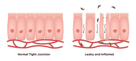 Celiac disease Small intestine lining damage. good and damaged villi . leaky gut progression Illustration