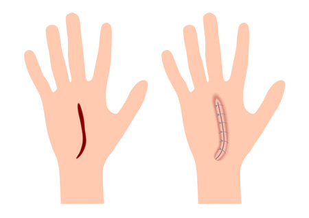 krwawienie z rany i grafika na skórze dłoni. wektor anatomii