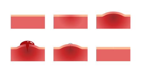 sangrado de la herida y gráfico de la piel. vector de anatomia