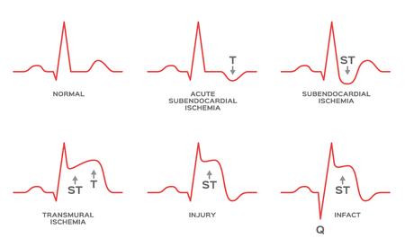 vettore di ischemia miocardica per diagnosi / NSTEMI, STEMI Vettoriali