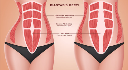 diastasic recti . abdominal . before after pregnancy vector / anatomy 스톡 콘텐츠 - 110606842