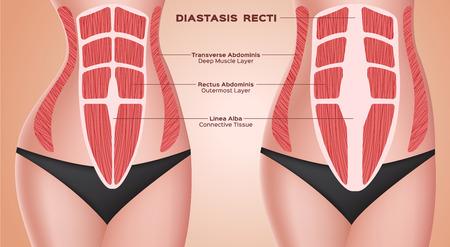 rectos diastásicos. abdominal. antes después del embarazo vector / anatomía